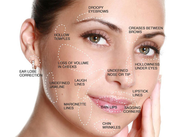 Anti-Wrinkle Injections - Adelaide - Lip Plumping Collagen