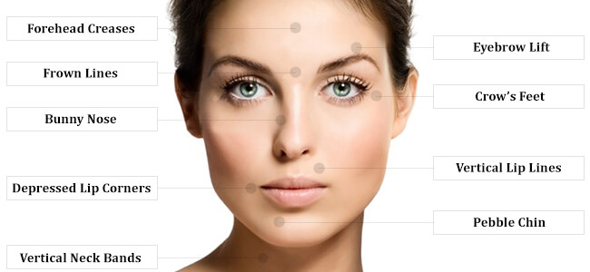 Anti Wrinkle Injections - Medicine of Cosmetics