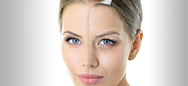 Chemical Skin Peel Adelaide