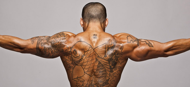Laser Tattoo Removal - Adelaide