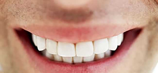 Teeth Whitening for Men in Adelaide