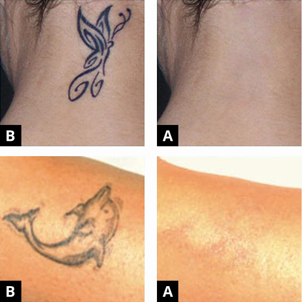 Before after treatments gallery medicine of cosmetics for Tattoo removal maryland