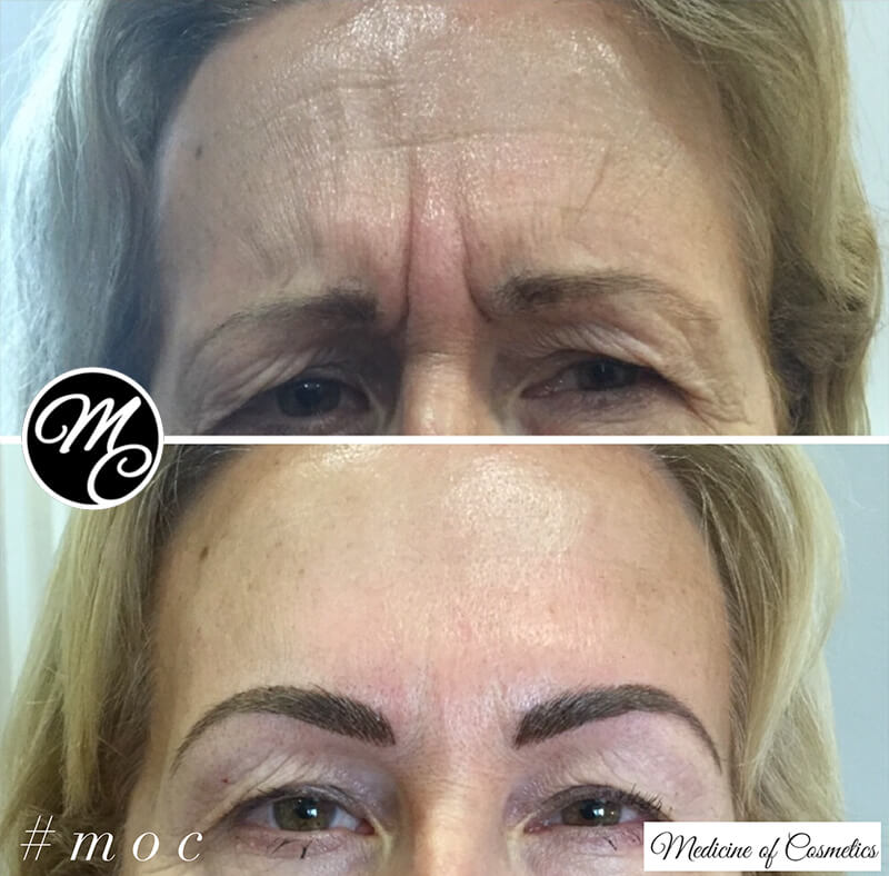 Medicine of Cosmetics - Anti Wrinkle Injections Adelaide