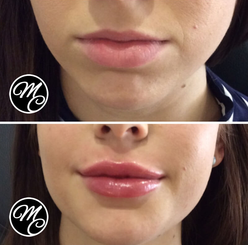 Medicine of Cosmetics - Lip Fillers