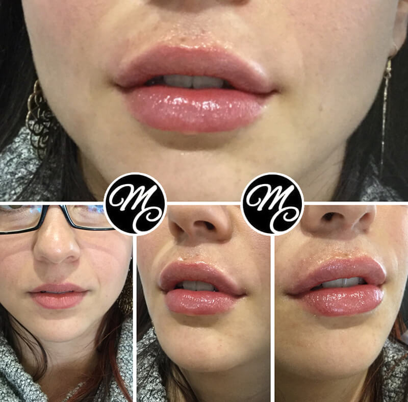Medicine of Cosmetics - Lip Fillers Adelaide