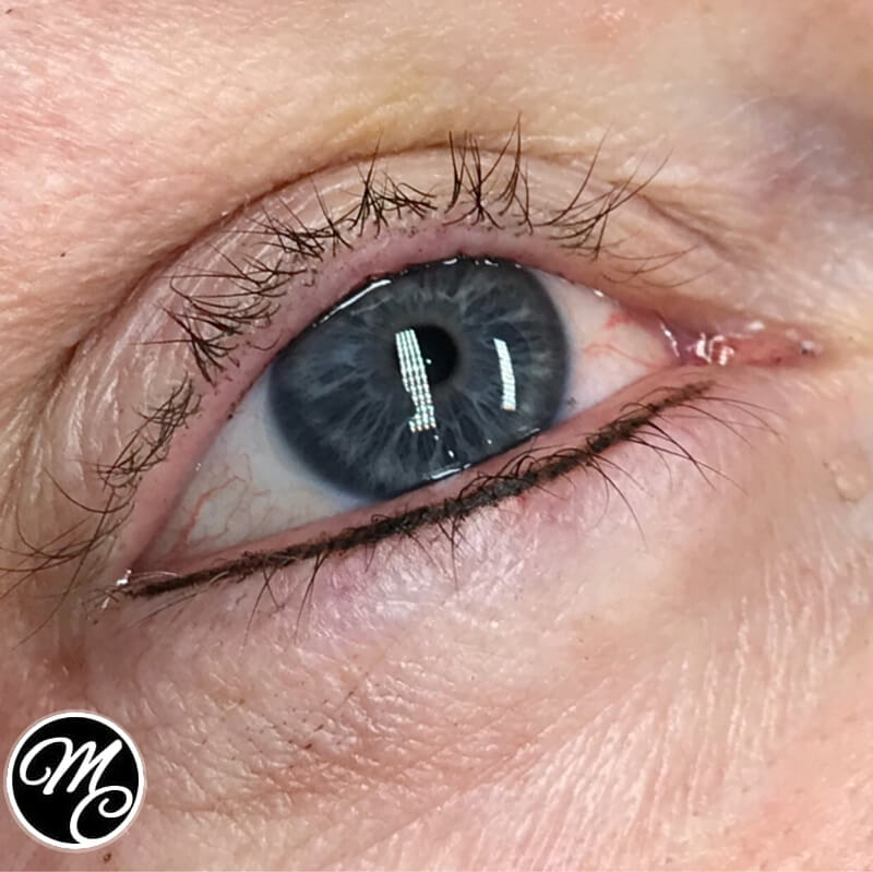 Medicine of Cosmetics - Eyeliner Tattoo