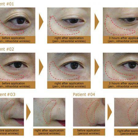 Eyeris Before After - Medicine of Cosmetics
